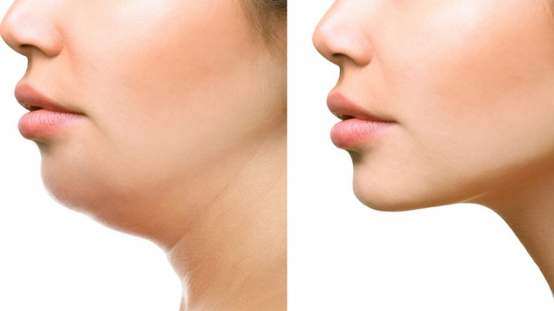 Best Exercises to Get Rid of a Double Chin